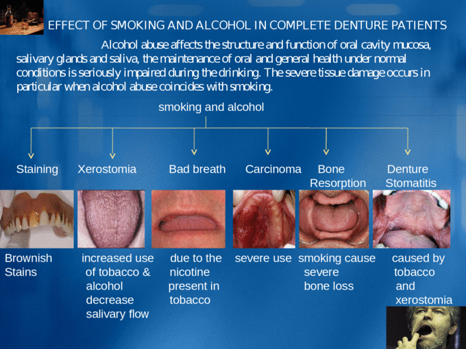 Effects of Smoking and Alcohol on Complete denture patients